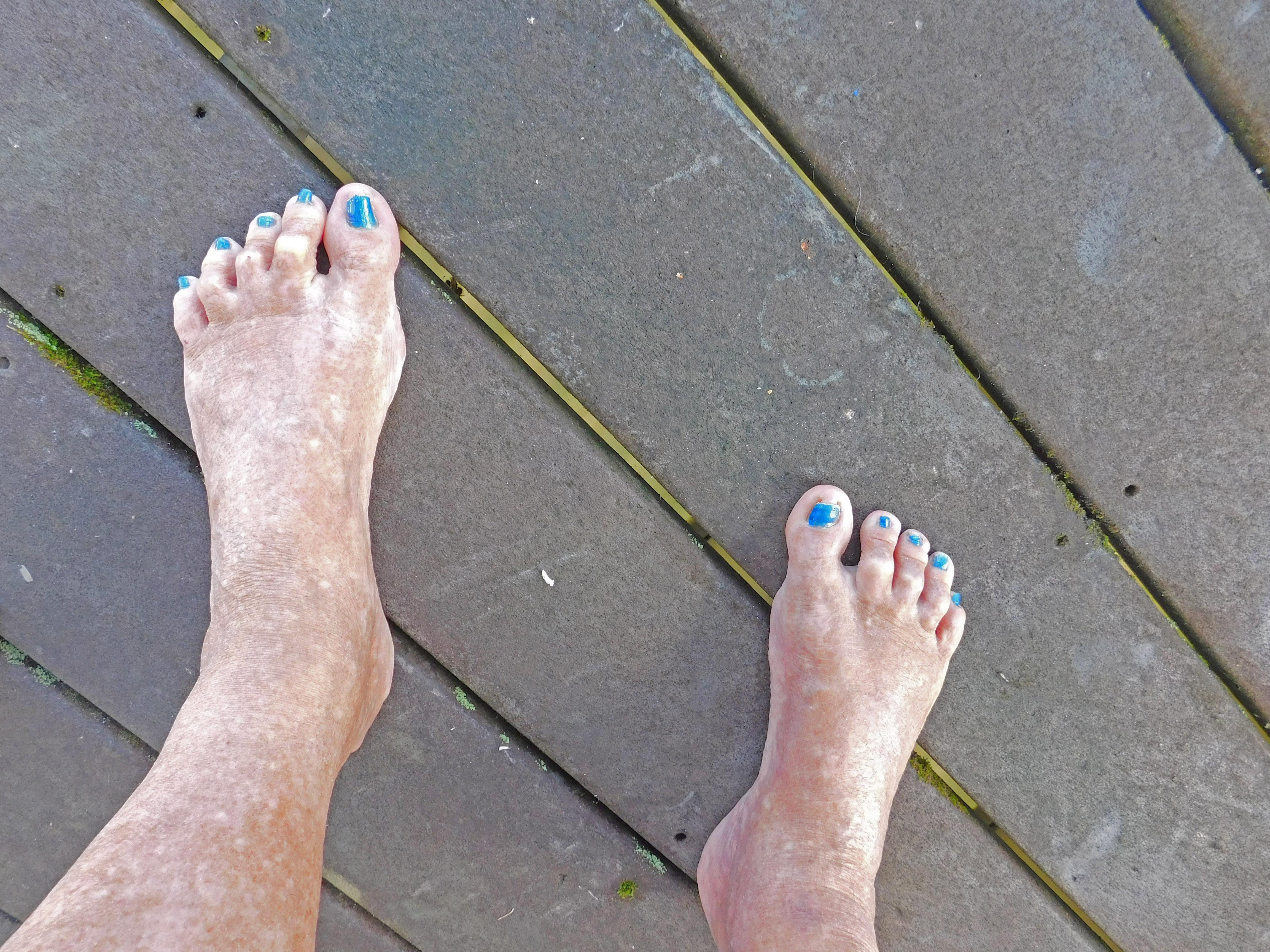Special for ingrown toenail sufferers (Hattie\'s Web)